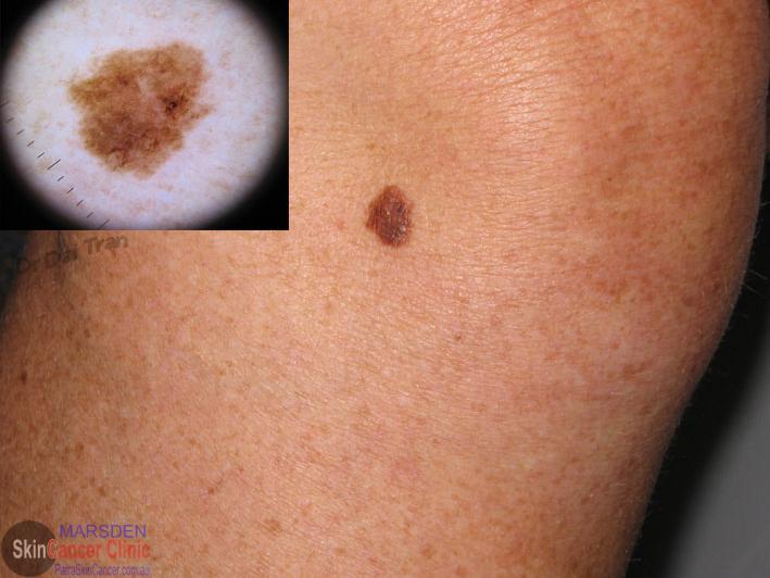 melanoma insitu