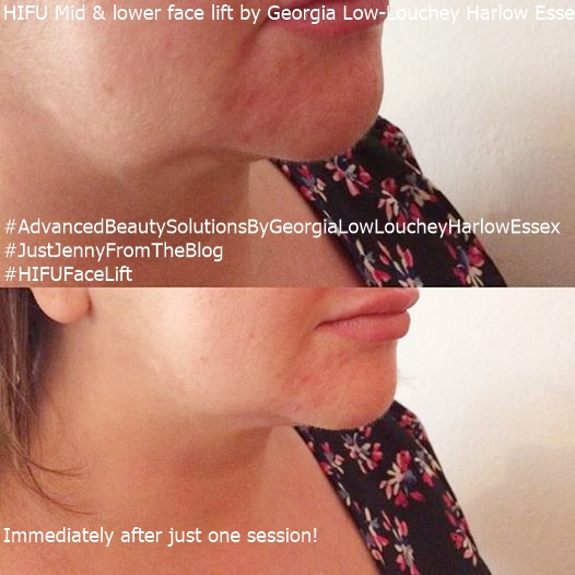 HIG+FU FACE LIFT (Non Surgical)