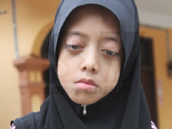 Derita Adik Anis, Tidak Pernah Merasa Berkelip Mata Seumur Hidup http://apahell.blogspot.com/2015/01/derita-adik-anis-tidak-pernah-merasa.html