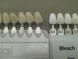 Cara Madame Tussauds Membuat Patung Lilin....!!!| http://poerwalaksana.blogspot.com/