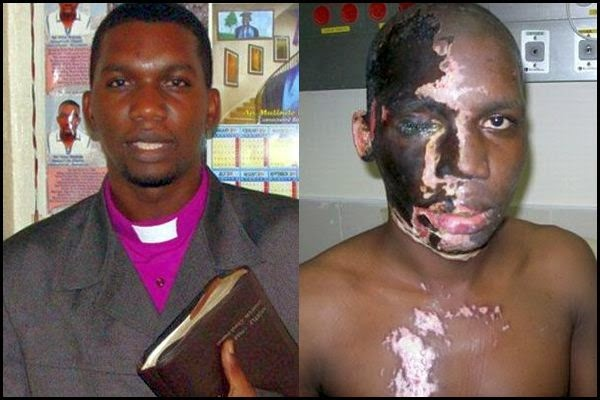 Christian Pastor Horrifically Scarred In Muslim Acid Attack Warns America Against Islam