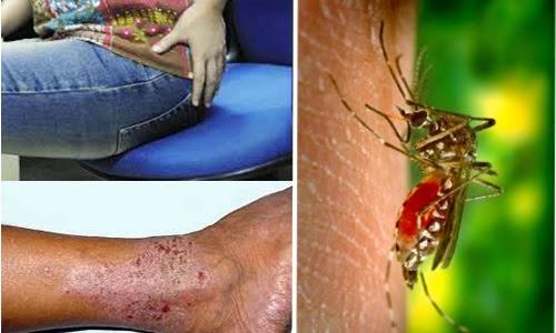 Obat Tradisional Mengobati Koreng Malaria Wasir