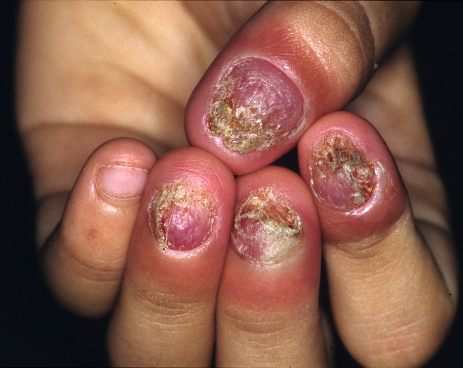 infection under fingernail