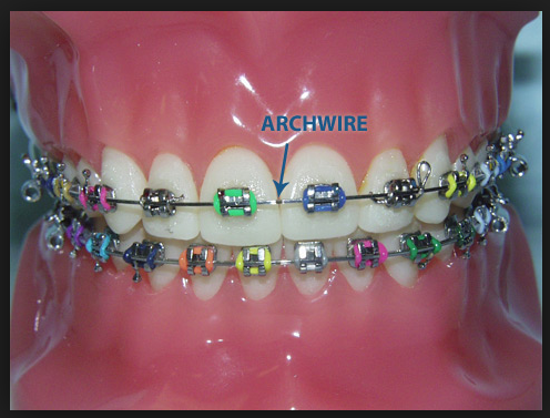 Gilbert AZ Orthodontist Archwires and Dental Braces