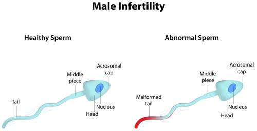 What is Male Infertility