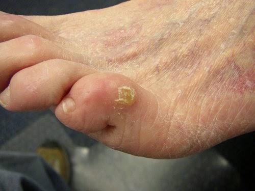 nasır tedavisi ayak nasırınasır nasıl gecer el  nasırı genital nasır