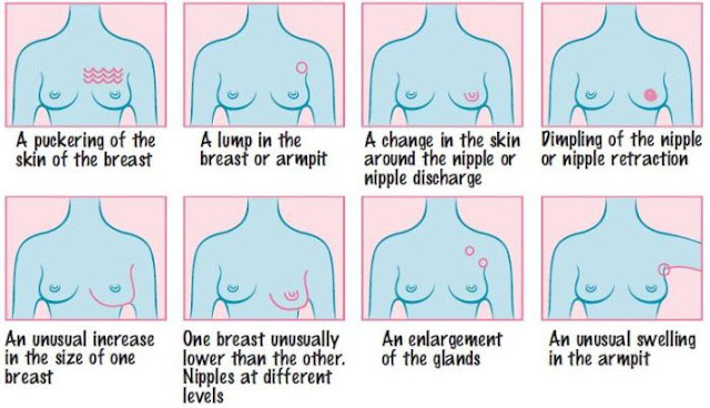 Warning-Signs-Breast-Cancer