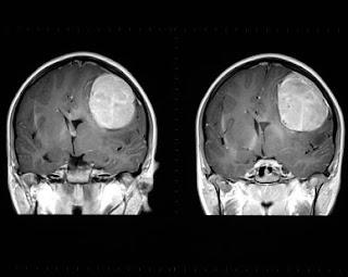 Nursing Care Plan for Brain Tumors