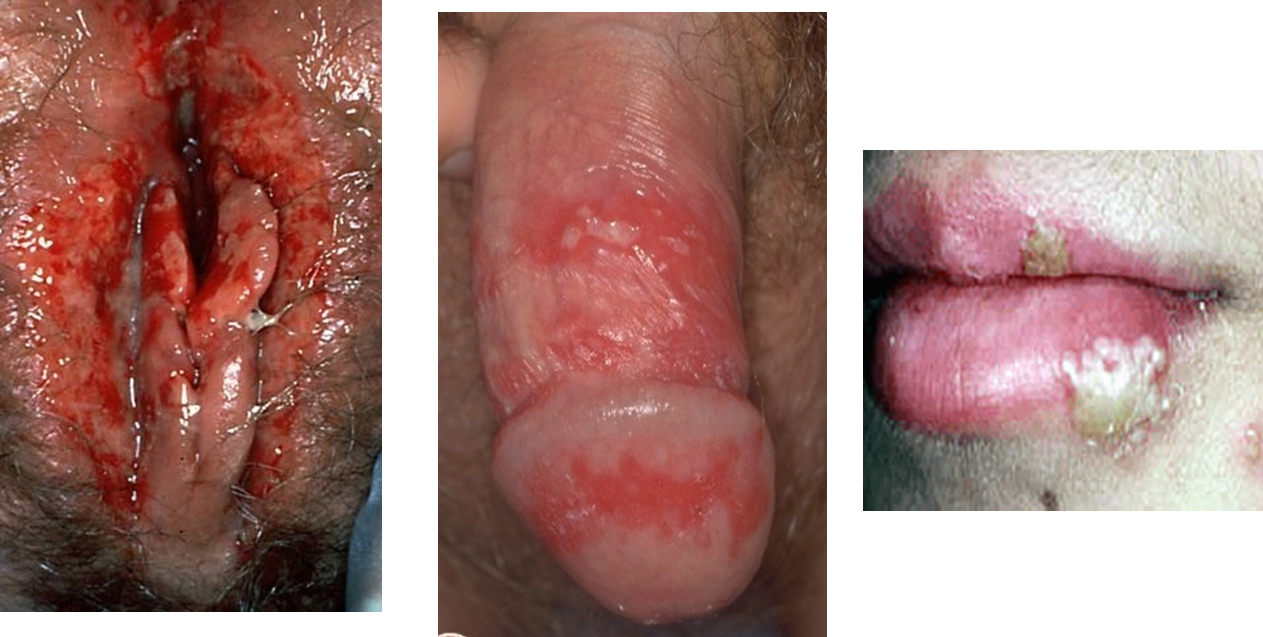 Pictures of Genital Herpes: Symptoms, Treatment, and More