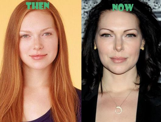 Plastic Surgery Stars Before and After : Laura Prepon plastic surgery ...