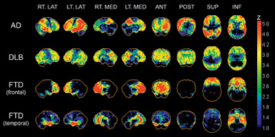 Pet Scans Detect Dementia and Differentiate Between Alzheimer, Frontotemporal, and Lewy Bodies Dementia