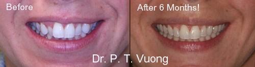 dr  phuoc vuong dentist - phuoc t  vuong  dmd  ms
