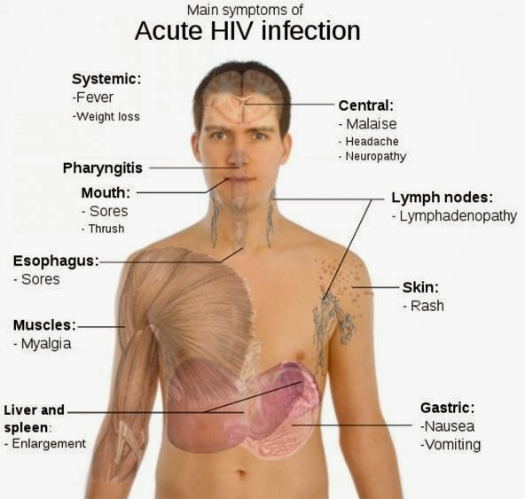 aids and hiv: most common symptoms and signs, Skeleton