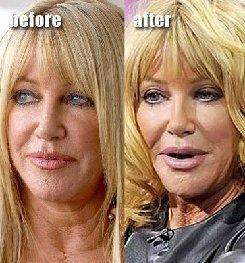 http://4.bp.blogspot.com/-QbVWnF1Bxeo/UH1xqYuoDMI/AAAAAAAAeWU/2KYX8kvRaNo/s1600/r%20plastic-surgery-facial-fillers-Awful-plastic-surgeryMA29085482-0034.jpg