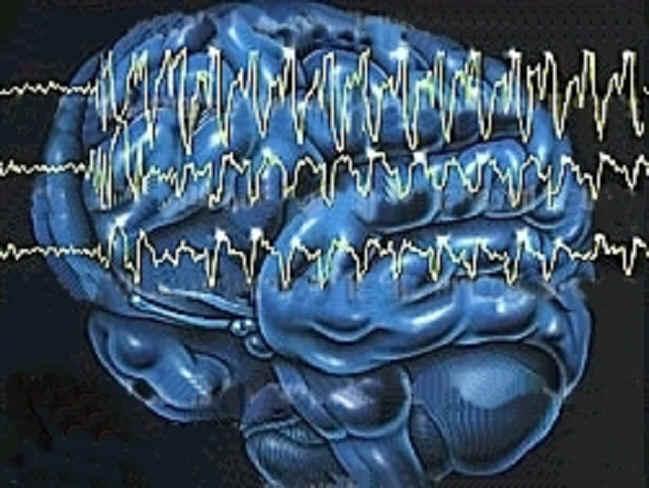 Teknologi Kesehatan: ELECTROENCHEPHALOGRAM (EEG)