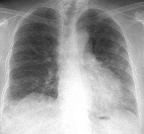 Interstitial Lung Disease X Ray Interstitial lung dise...