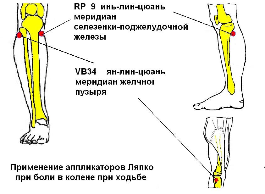 Почему болит колено с внутренней стороны