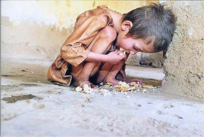 anak kelaparan