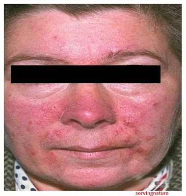 Healthy Body-Healthy Mind: Acne Vulgaris