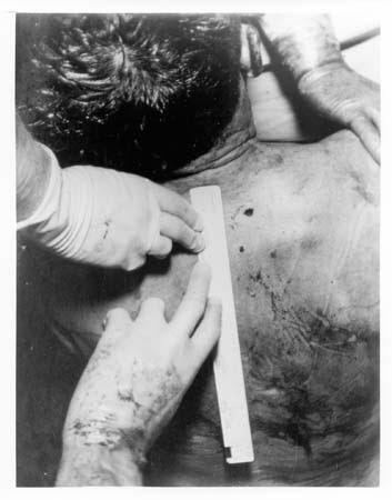 00e.+JFK+Autopsy+Photo.jpg