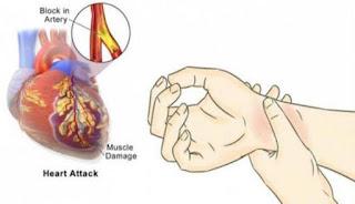 inilah 7 tips sederhana mencegah serangan jantung harus anda coba