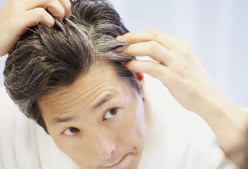 Benarkah Stres Mengakibatkan Rambut Beruban pada Usia Muda?