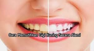 Cara Memutihkan Gigi Kuning dengan Cepat