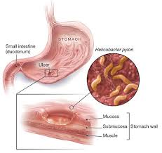 obat alami penyakit lambung