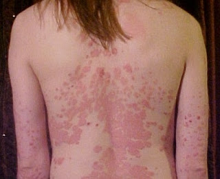 Psoriasis-treatment-remedies-prevention-Hindi
