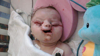 tessier cleft lip and palate christian