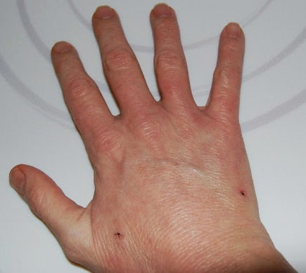 Mild eczema on hands treatment