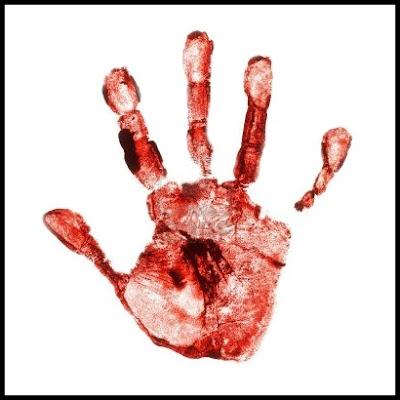 Cara Menghentikan Pendarahan Saat Terluka