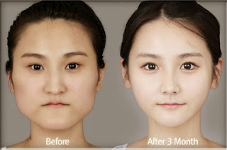 Korean Celebrities Face Contouring – Two Jaw Surgery Wonjin