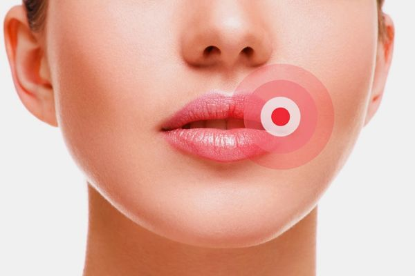 cara mengatasi bibir yang kering