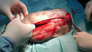 cirugía lipoma
