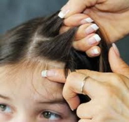how to get rid of lice naturally how to get rid of head lice