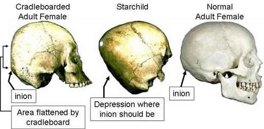 The Starchild Skull: An Alien-Human Hybrid Proof?