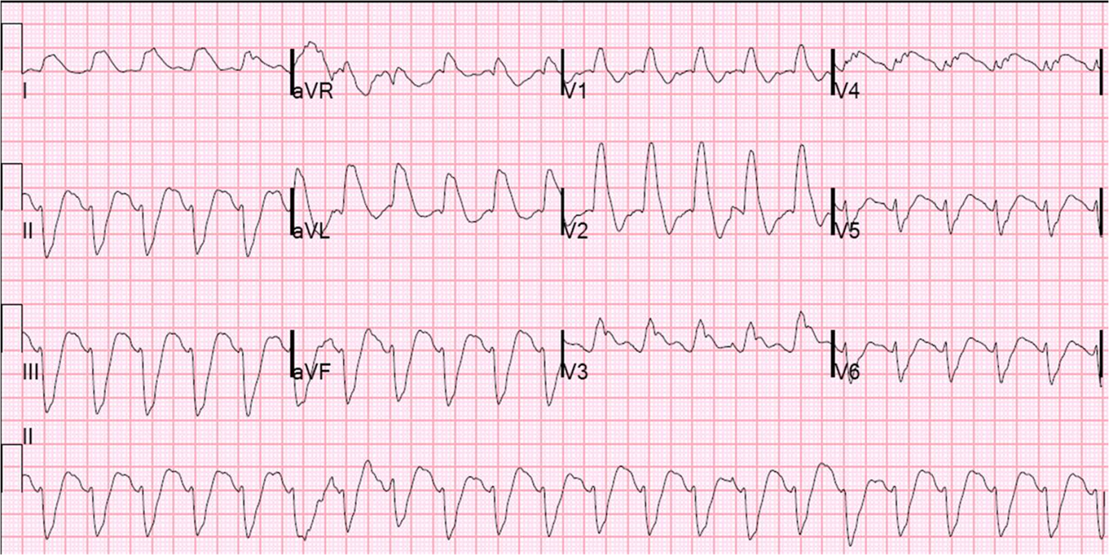 What does afib look like on a ekg