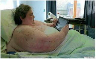 Lihat X Ray Apa Sebenar Dalam Badan Lelaki Gemuk 440kg
