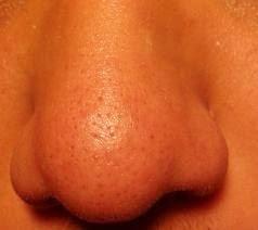 minimize pores nose
