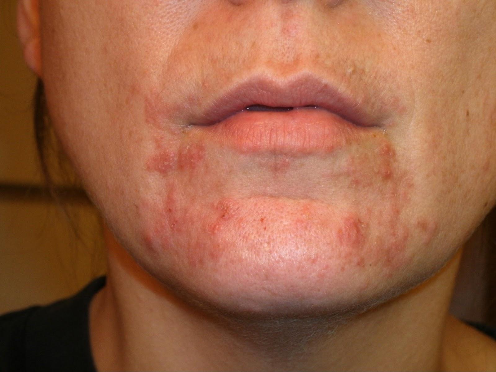 staphylococcus rash
