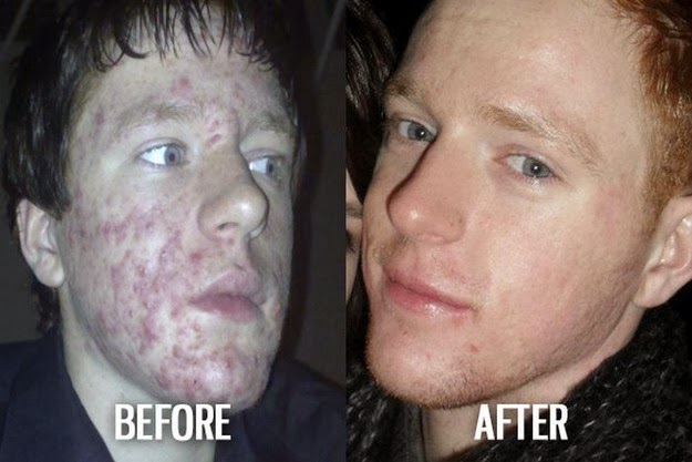 before and after photos5