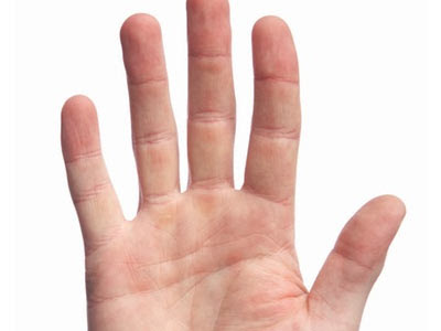 Más eficaz el ungüento de la psoriasis