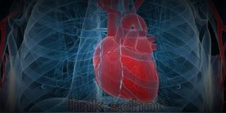 Faktor Penyebab serangan jantung