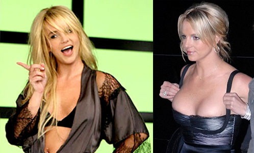 Britney Spears Plastic Surgery Before After Breast