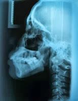 TMD Diagnosis