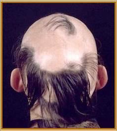 Thesis on alopecia areata