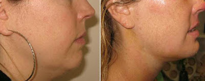 Exercises to reduce double chin and chubby cheeks