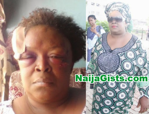 henrietta kosoko head injury