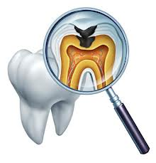 Cara Menyembuhkan Gigi Berlubang Sampai Tuntas
